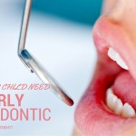 Does Your Child Need Early Orthodontic Intervention?