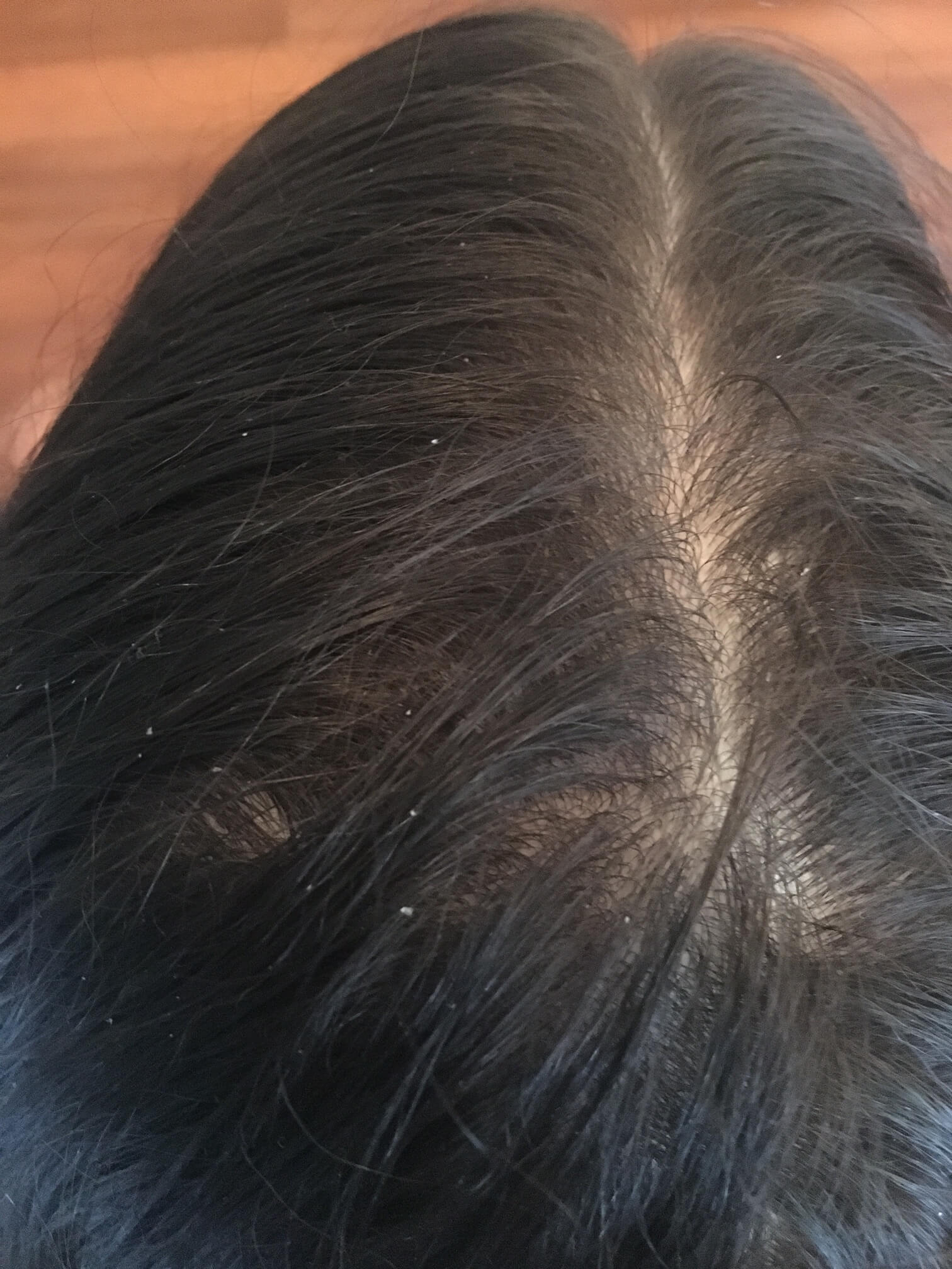 Forum on this topic: Essential Oils For Lice, essential-oils-for-lice/